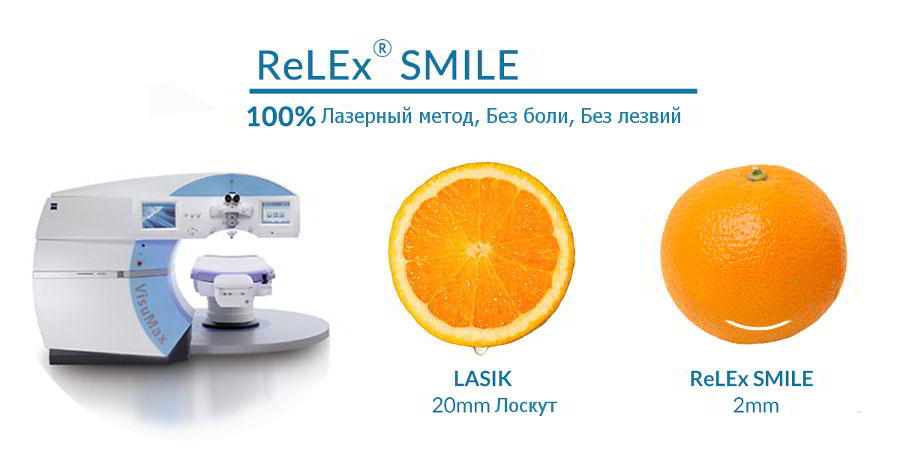kiz-1-smile-vs-lasik.jpg