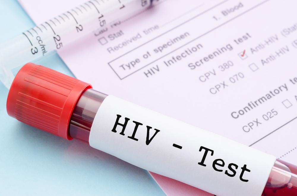 3 случай полного излечения от ВИЧ: конец эпидемии близок