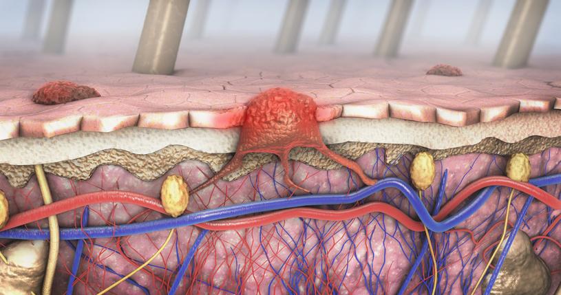 Установлены новые причины рака кожи