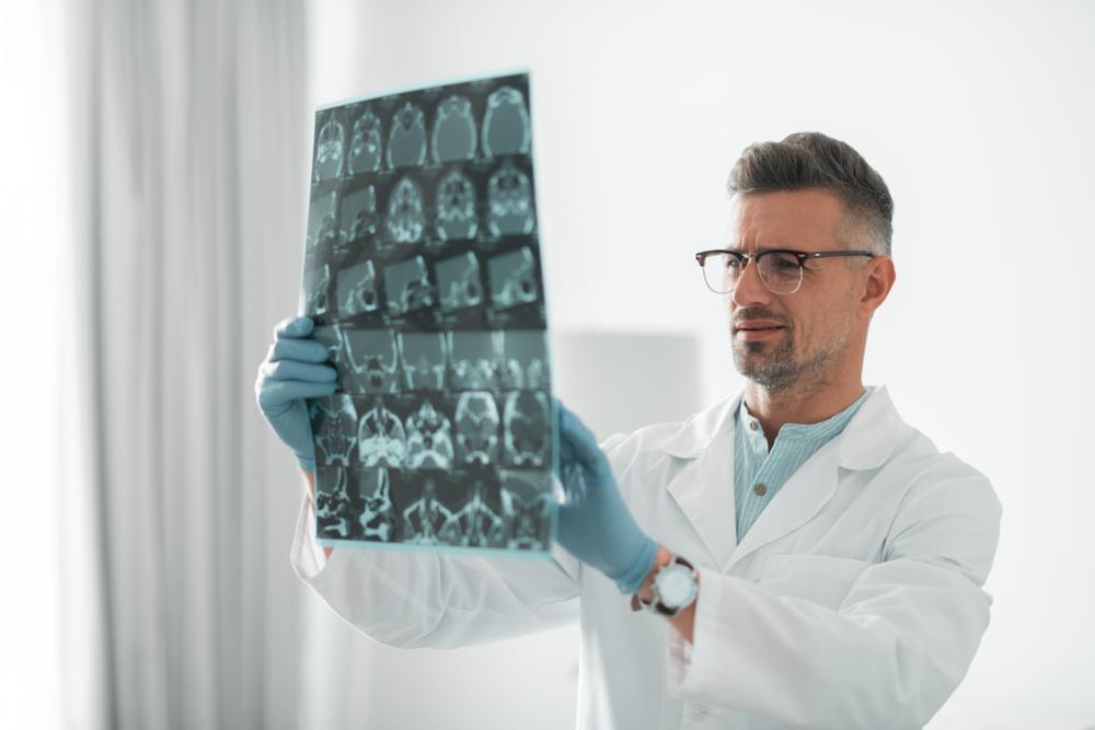 сострясение мозга