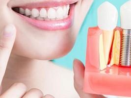 3D-имплантация зубов: что представляет собой технология и как создается трехмерная модель
