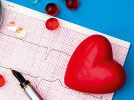 Аритмия: причины заболевания, диагностика и успешные методы лечения