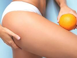 5 мифов об антицеллюлитном массаже, которые не соответствуют действительности