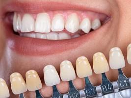 Спросили эксперта: какой самый простой способ отбелить зубы