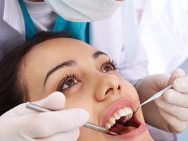 Личный опыт: стоит ли чистить зубы у стоматолога?