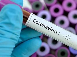 В России запускают тест-систему для определения иммунитета к коронавирусу