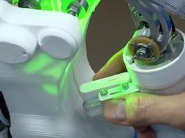 Робот и Роза: уникальная операция по удалению опухоли прошла успешно