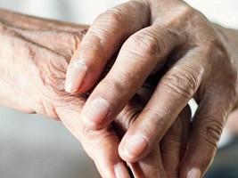 Ученые выявили, что болезнь Паркинсона развивается не так, как считалось раньше
